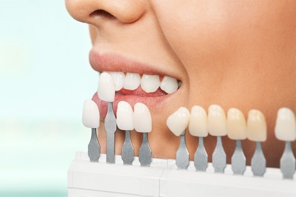 Dental Care in Cape Town